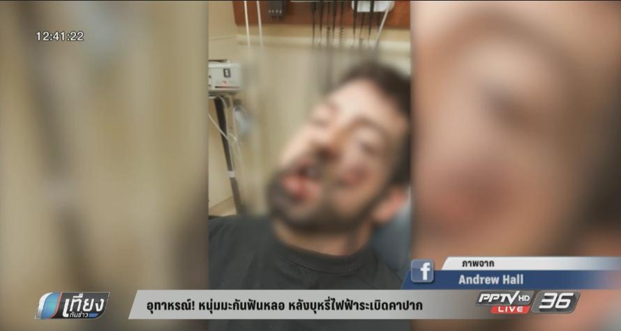 อุทาหรณ์! หนุ่มสหรัฐฯ ฟันหลุด หลังบุหรี่ไฟฟ้าระเบิดขณะสูบ