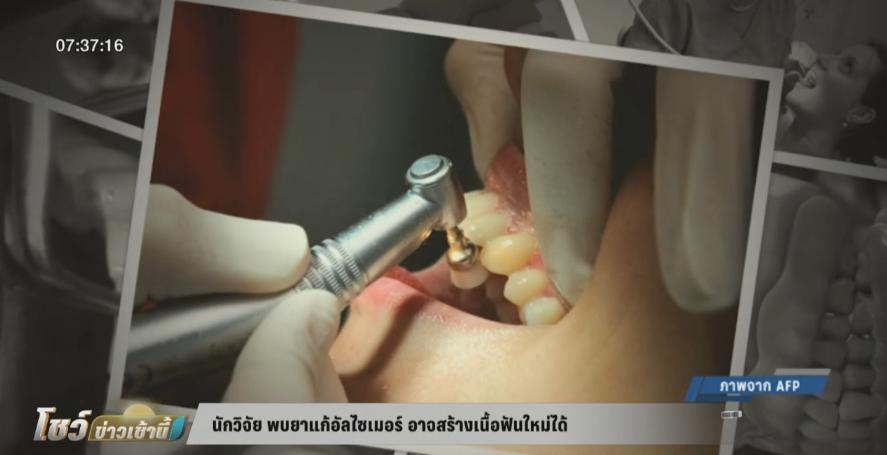 นักวิจัย ค้นพบยาแก้อัลไซเมอร์ อาจช่วยสร้างเนื้อฟันใหม่ได้