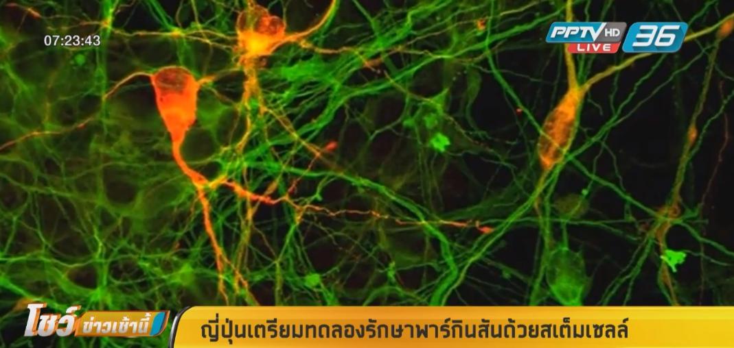 ญี่ปุ่นเตรียมทดลองรักษาพาร์กินสันด้วยสเต็มเซลล์ในมนุษย์