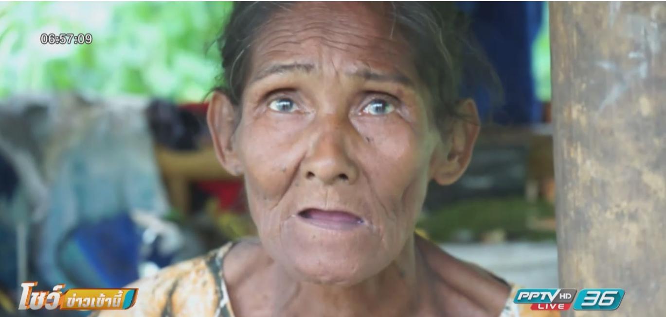 สุดอนาถ! พบยายวัย72ปีอยู่ลำพังไร้ญาติ จ.ชุมพร
