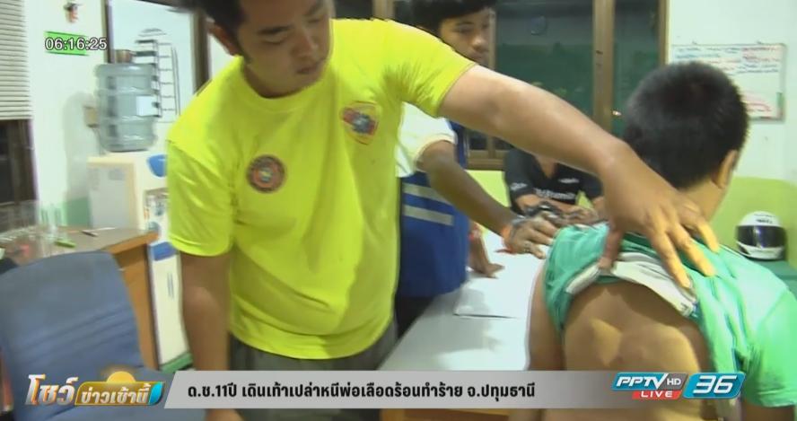 เด็กชาย 11 ปี เดินเท้าเปล่าหนีพ่อเลือดร้อนทำร้าย จ.ปทุมธานี