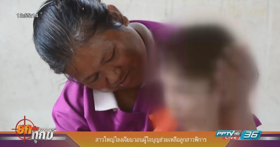 สาวใหญ่โขงเจียมวอนผู้ใจบุญช่วยเหลือลูกสาวพิการ