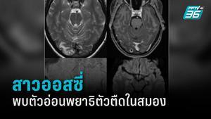 สาวออสซี่ช็อก พบตัวอ่อนพยาธิตัวตืดในสมอง