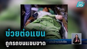 """หมอต่อแขน """"น้องแมนยู"""" วัย 9 ขวบ ตาซ้ายบอด ถูกเก๋งชนแขนขาด"""