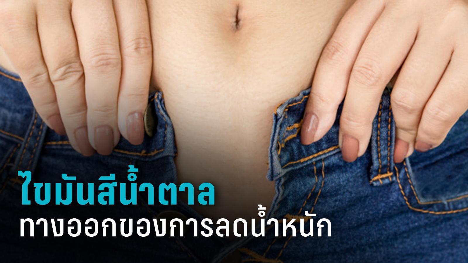ไขมันสีน้ำตาล ทางออกของการลดน้ำหนัก