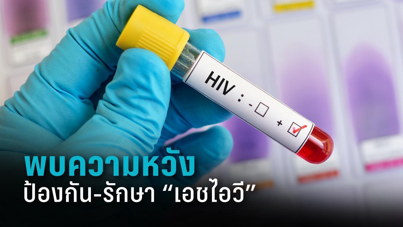 """คองโกพบความหวังพัฒนา """"วัคซีน-วิธีรักษา"""" เอชไอวี"""