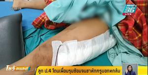 พ่อเดือด ลูกป.4 ถูกเพื่อนรุมกระทืบขาหัก 2 ท่อน แต่ครูบอกหกล้ม