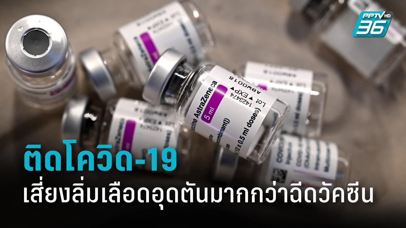 ออกซ์ฟอร์ดเผย ติดโควิด-19 เสี่ยงลิ่มเลือดอุดตันมากกว่าฉีดวัคซีน