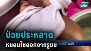 พบหญิงป่วยประหลาด คล้ายมีหนอนไชออกจากรูขน แพทย์คาดแมลงฝักไข่