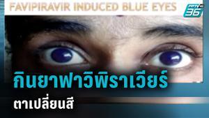 พบผู้ป่วยโควิด-19 ตาเปลี่ยนสี หลังกินยาฟาวิพิราเวียร์