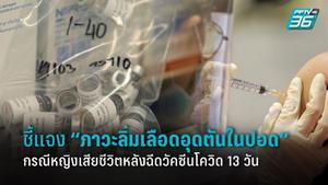 แจง ภาวะลิ่มเลือดอุดตันในปอด กรณีหญิงอายุ 32 ปี เสียชีวิต หลังฉีดวัคซีนโควิด 13 วัน