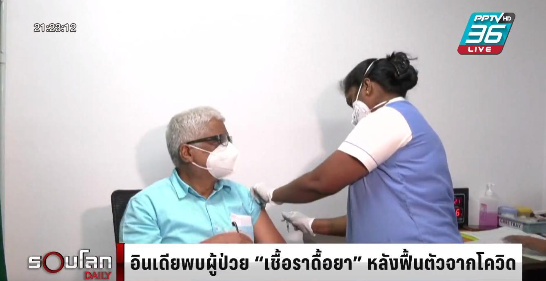 """อินเดียพบผู้ป่วย """"เชื้อราดื้อยา"""" หลังฟื้นตัวจากโควิด-19"""