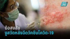 """""""งูสวัดหลังฉีดวัคซีนโควิด-19"""" อาจไม่ใช่สาเหตุจากวัคซีน"""