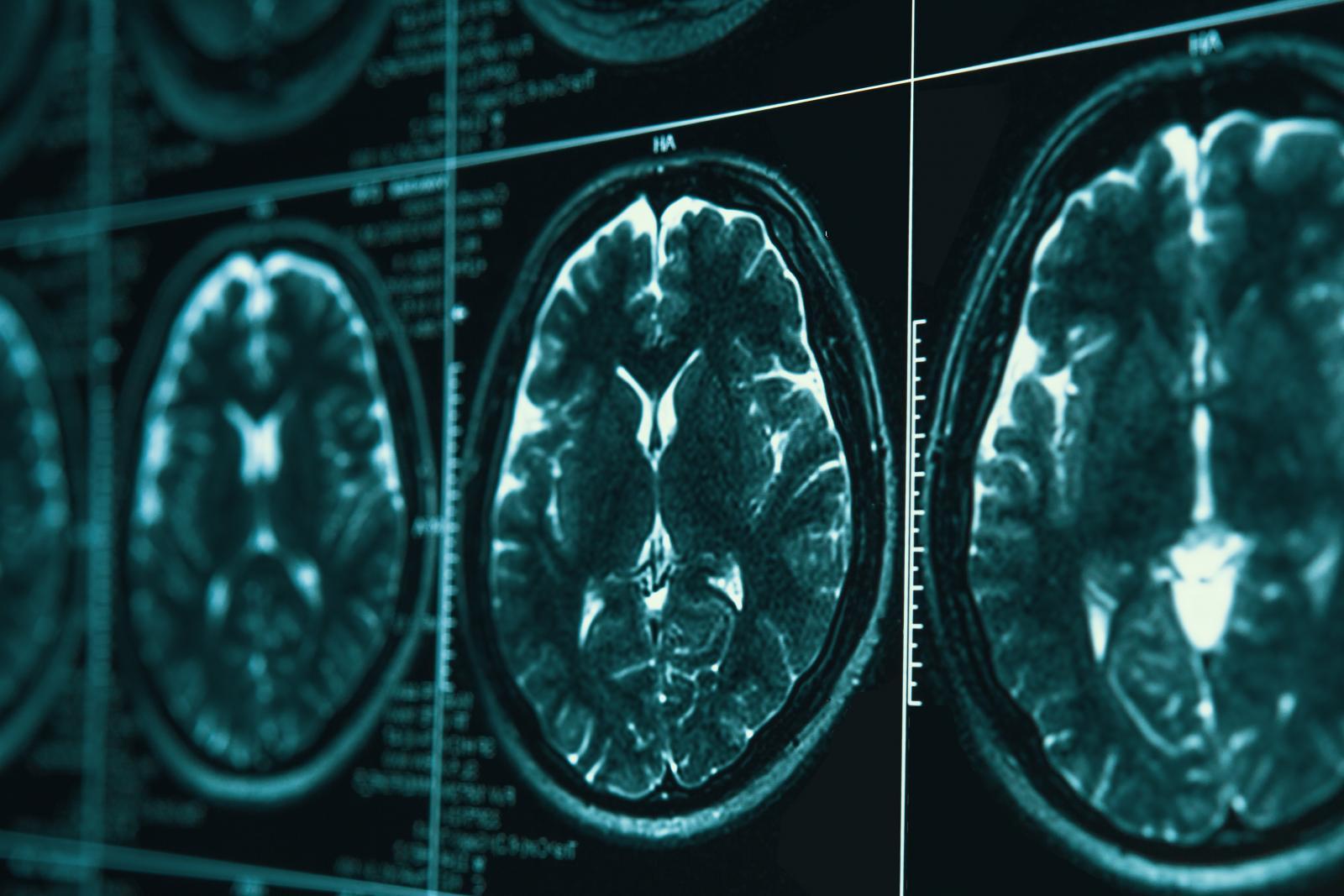 นักวิจัยพบความสัมพันธ์ โควิด-19 อาจทำให้เกิดความผิดปกติในสมอง