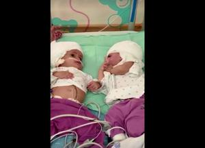 อิสราเอลผ่าตัดแยกฝาแฝดหญิงศีรษะติดกันสำเร็จเป็นครั้งแรก