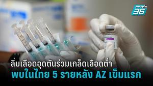 พบเข้าข่าย ภาวะลิ่มเลือดอุดตันร่วมเกล็ดเลือดต่ำ 5 ราย หลังฉีดแอสตร้าเซเนก้าเข็มแรก