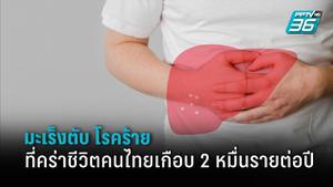 แพทย์ เผย ตัวเลขคนไทยเป็นมะเร็งตับ ราว 139,000 ราย ผู้ป่วยรายใหม่มากกว่า 2 หมื่นคน
