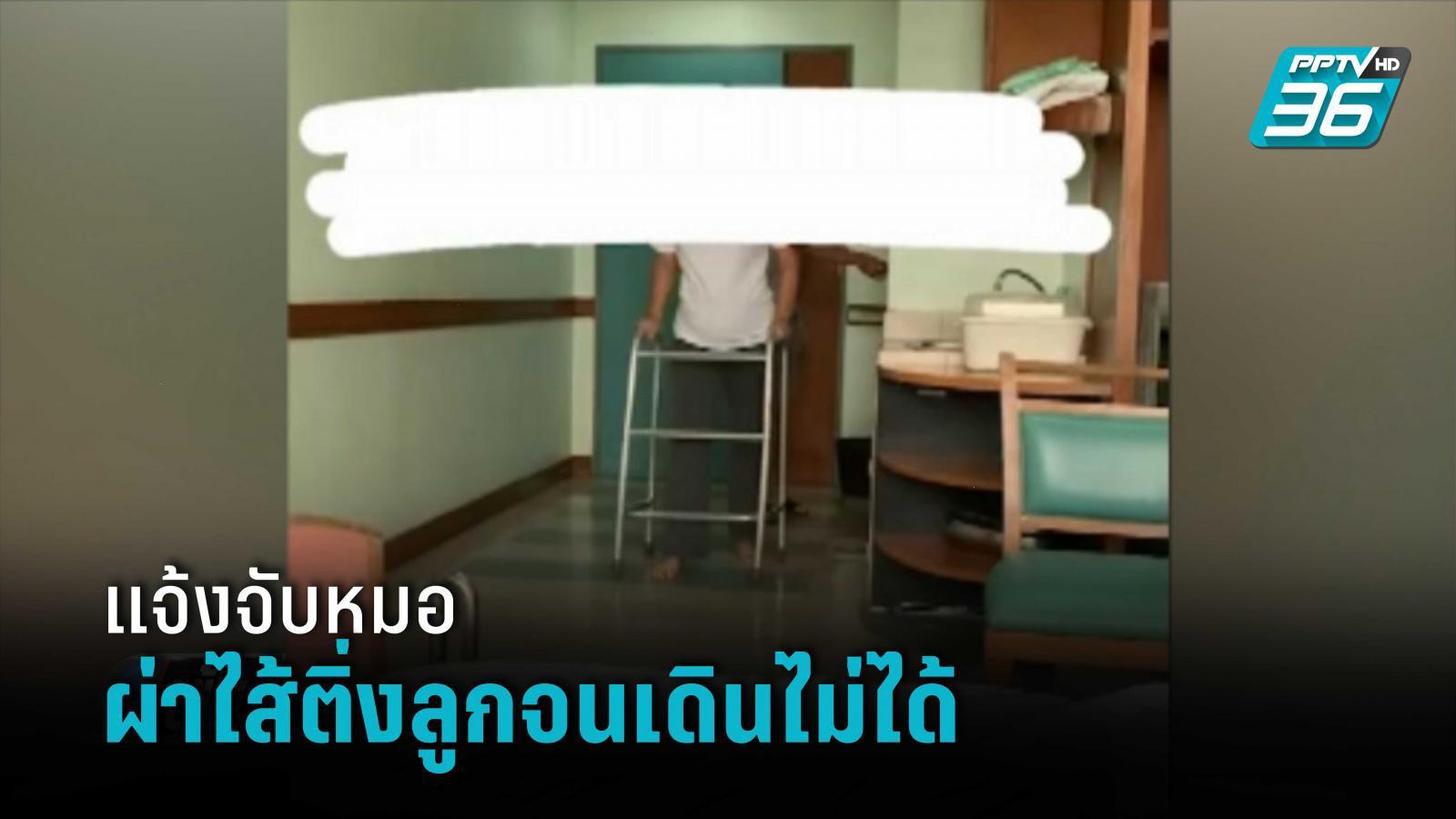 พ่อแจ้งจับหมอ หลังผ่าไส้ติ่งลูกสาวจนเดินไม่ได้ หวันพิการ   เข้มข่าวค่ำ