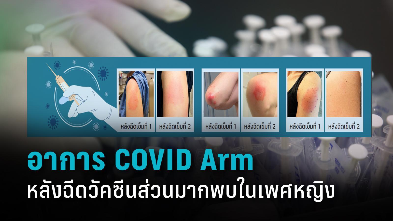 """""""COVID Arm"""" อาการบวมแดงหลังฉีดวัคซีนส่วนมากพบในเพศหญิง"""