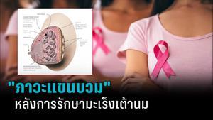 """""""มะเร็งเต้านม"""" กับภาวะแขนบวมหลังการรักษา"""