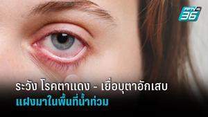 ระวัง!! โรคตาแดง - เยื่อบุตาอักเสบ ที่แฝงมากับน้ำท่วม