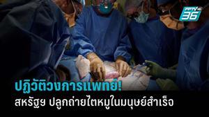 ปฏิวัติวงการแพทย์! สหรัฐฯ ปลูกถ่ายไตหมูในมนุษย์สำเร็จครั้งแรกในโลก