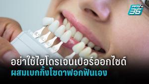 อย่า...! ใช้ไฮโดรเจนเปอร์ออกไซด์ ผสมเบกกิ้งโซดาฟอกฟันเองอาจส่งผลเสียกับสุขภาพปากและฟัน